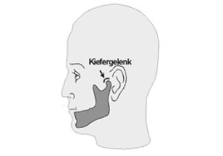 CMD und Tinnitus – Stress im Ohr durch krankes Kausystem